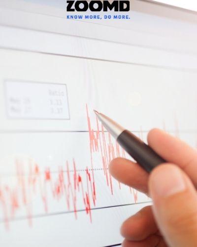 ZOOMD TECHNOLOGIES GRANTS STOCK OPTIONS
